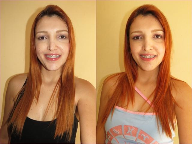 keraton cobre antes e depois